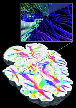 GPU 활용 고화질 두뇌 모델 렌더링.